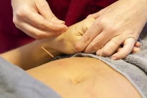Akupunkturpraktiken